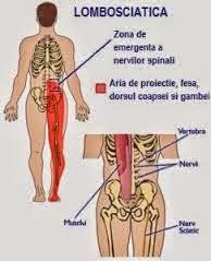 dureri de spate lombara