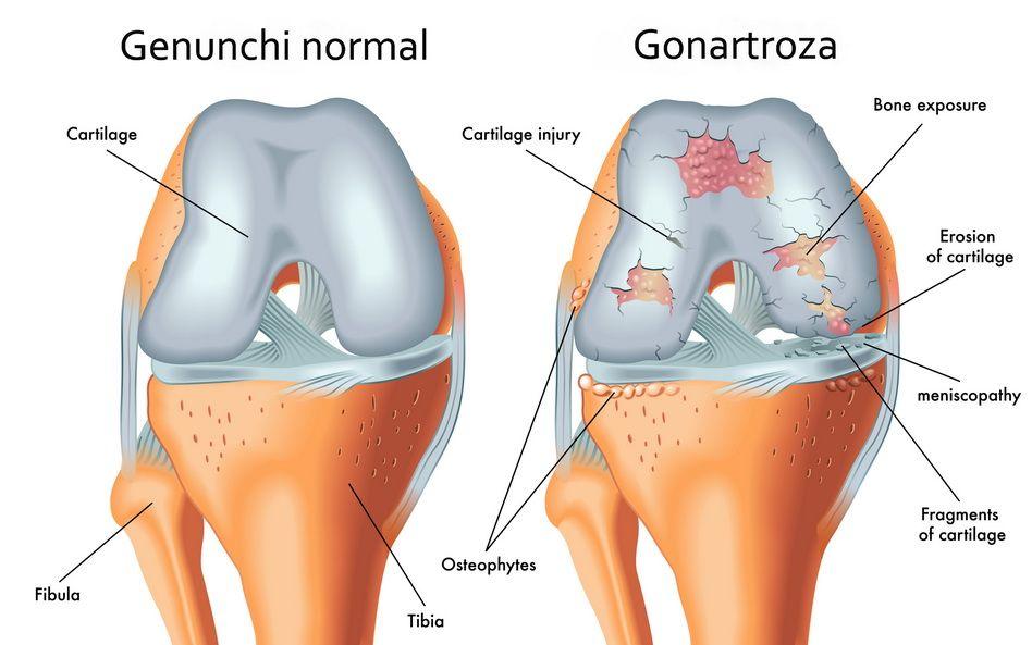durere la nivelul articulațiilor șoldurilor